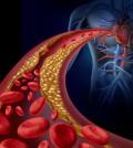 Jak obniżyć poziom złego cholesterolu